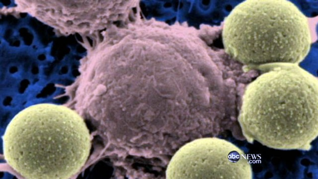 "VIDEO: New ""serial killer cells"" hunt down cancer in your body and destroy it."