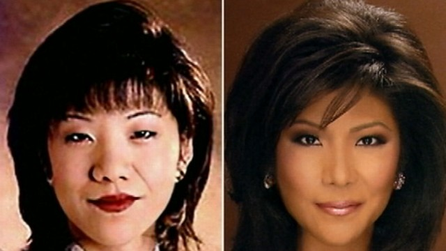 VIDEO:Each year more than 10,000 Asian Americans get eye surgery.