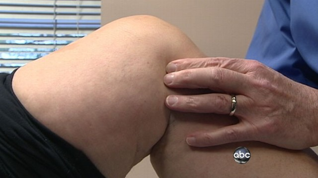VIDEO: More women staying active, more joint injuries later on in life.