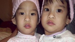 VIDEO: Angelina and Angelica Sabuco were born connected from chest to abdomen.