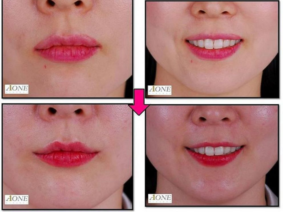 Cosmetic Surgery Mouth 105