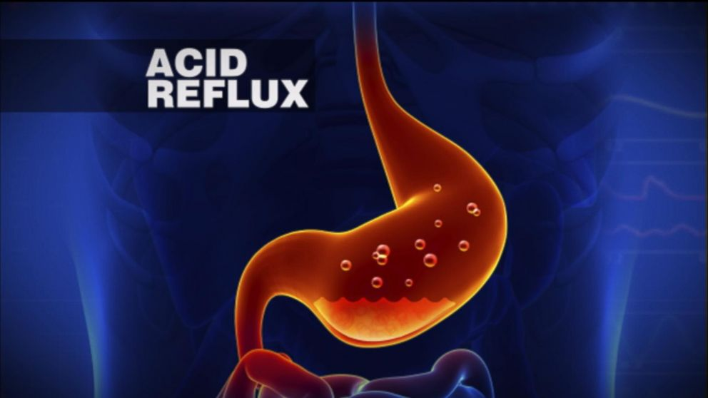 President Obama Diagnosed With Acid Reflux Video Abc News