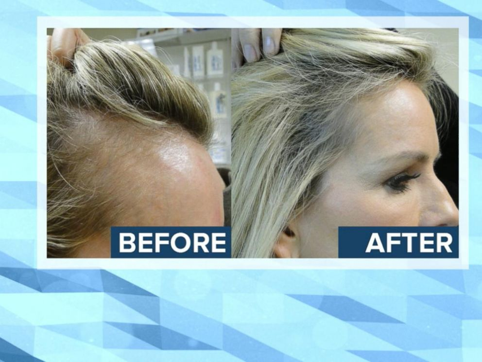 Image result for Is there any hope for severe hair loss
