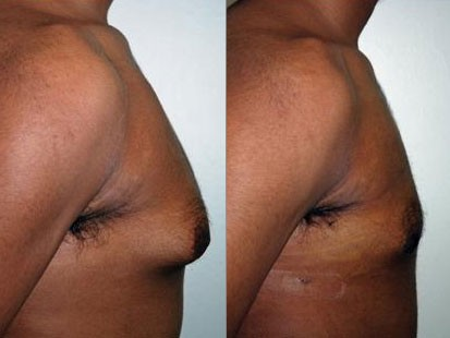 man breast reduction comparison photo