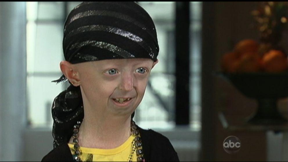 Hayley Okines Battles 'Aging Disease' Progeria Video - ABC ...  Hayley Okines B...