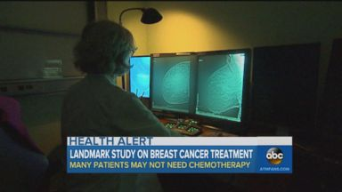 Chemo may not be necessary for breast cancer patients: Study