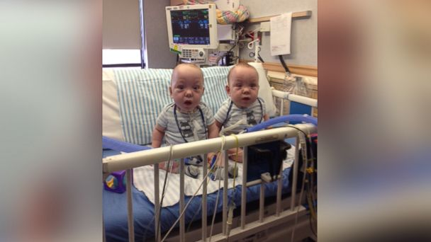 Conjoined Twins See Sunlight For The First Time Abc News