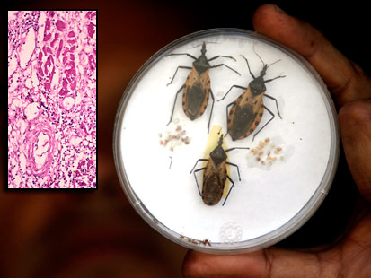 Bed Bugs,Tapeworms and Bot Flies: Seven Terrible Parasite