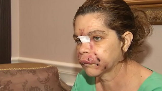 PHOTO:  Isabel Gonzalez remains in the hospital after receiving facial rejuvenation treatments from an unlicensed spa owner.