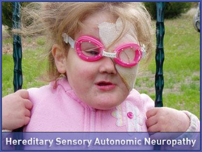 Hereditary sensory and autonomic neuropathies ...  Hereditary Sensory And Autonomic Neuropathy
