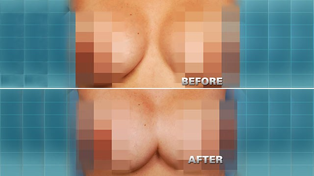 PHOTO:Pictured here is Dinora Rodriguez, 40, who had her existing breast implants adjusted by a surgeon that form a uniboob.