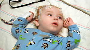 Baby Has Half of His Brain Removed to Treat Seizures - ABC ...
