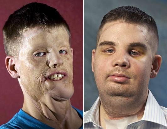 Disfigured Guy -