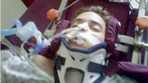 "Paralyzed Gymnast Walks After ""Frozen Spine"" Treatment ..."