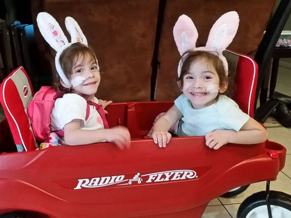 what life is like now for formerly conjoined twin sisters after separation surgery abc news. Black Bedroom Furniture Sets. Home Design Ideas