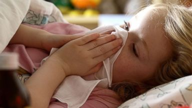 What is croup? Everything you need to know about the cold-like illness that affects children the most