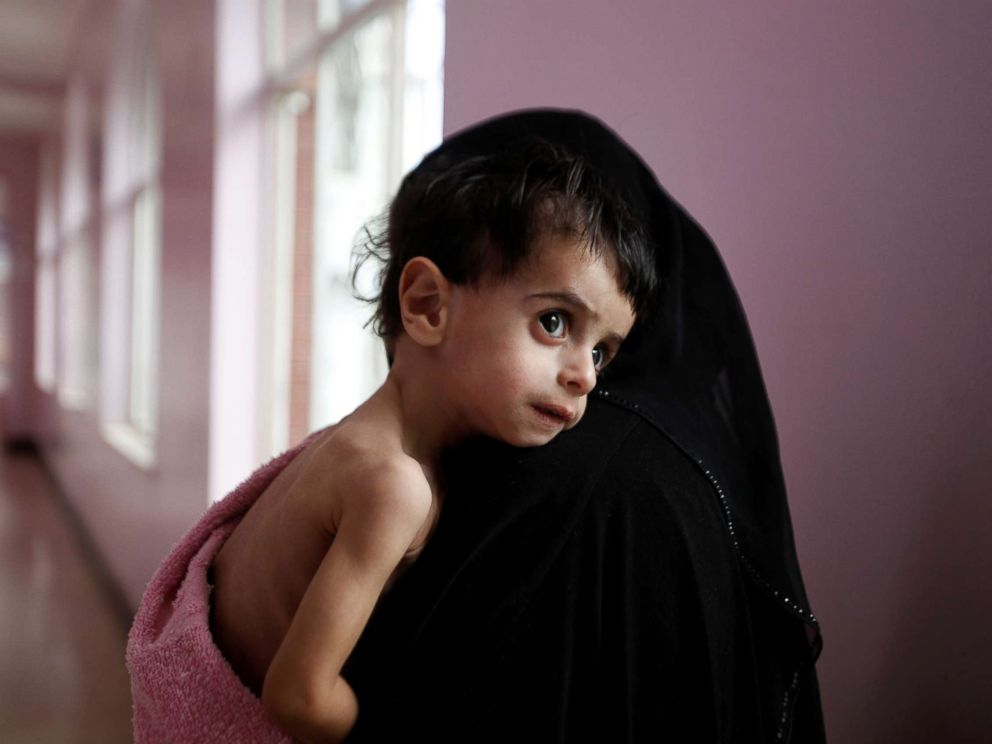 PHOTO: A woman holds her malnourished boy after he was weighed at a hospital malnutrition intensive care unit in Sanaa, Yemen, Sept. 27, 2016.