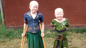 Africans With Albinism Hunted in Tanzania - ABC News