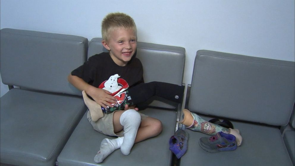 New Leg For Boy Whose Prosthetic Limb Was Stolen Video