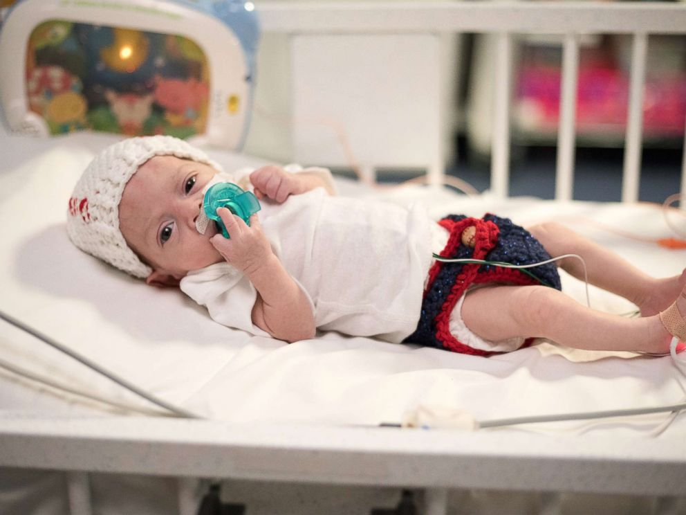 PHOTO: Fitted in a hat knit as a baseball and cute blue shorts, Giovanni, one of CHOAs NICU babies, is ready for Halloween.