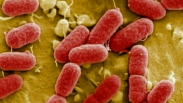 Deadly plague and botulism microbes found in US lab - BBC News